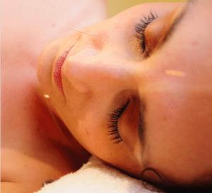 ansia reattiva agopuntura